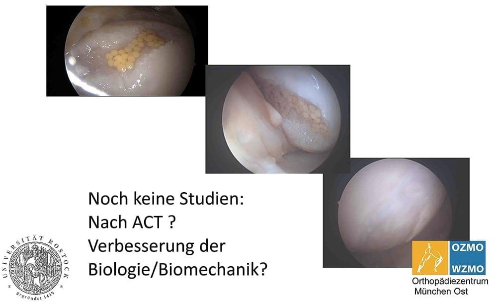 Лечение артроза стволовыми клетками в Ортопедическом центре Мюнхен Ост (OZMO). Регенерация суставов .Фото