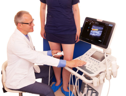 Диагноз «варикоз»: лечение без операции возможно?