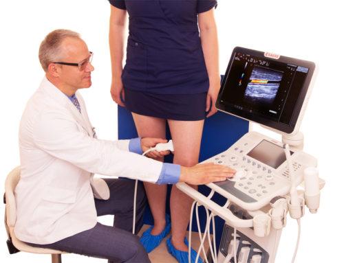 Если диагноз «варикоз», выбирайте лечение варикоза без операции