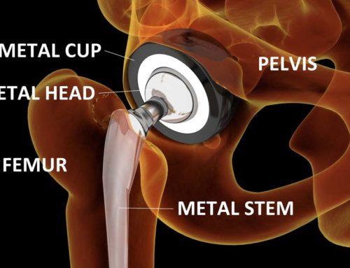 Тотальное эндопротезирование тазобедренного сустава в Чехии