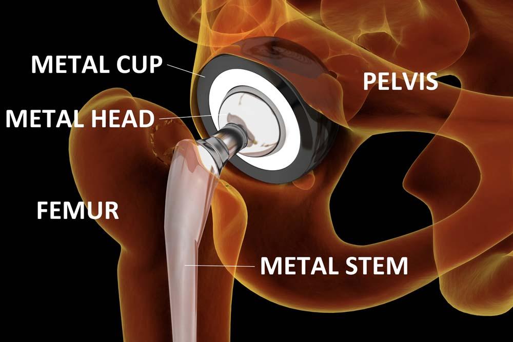замена тазобедренного сустава. тотальное эндопротезирование. фото. Depositphoto