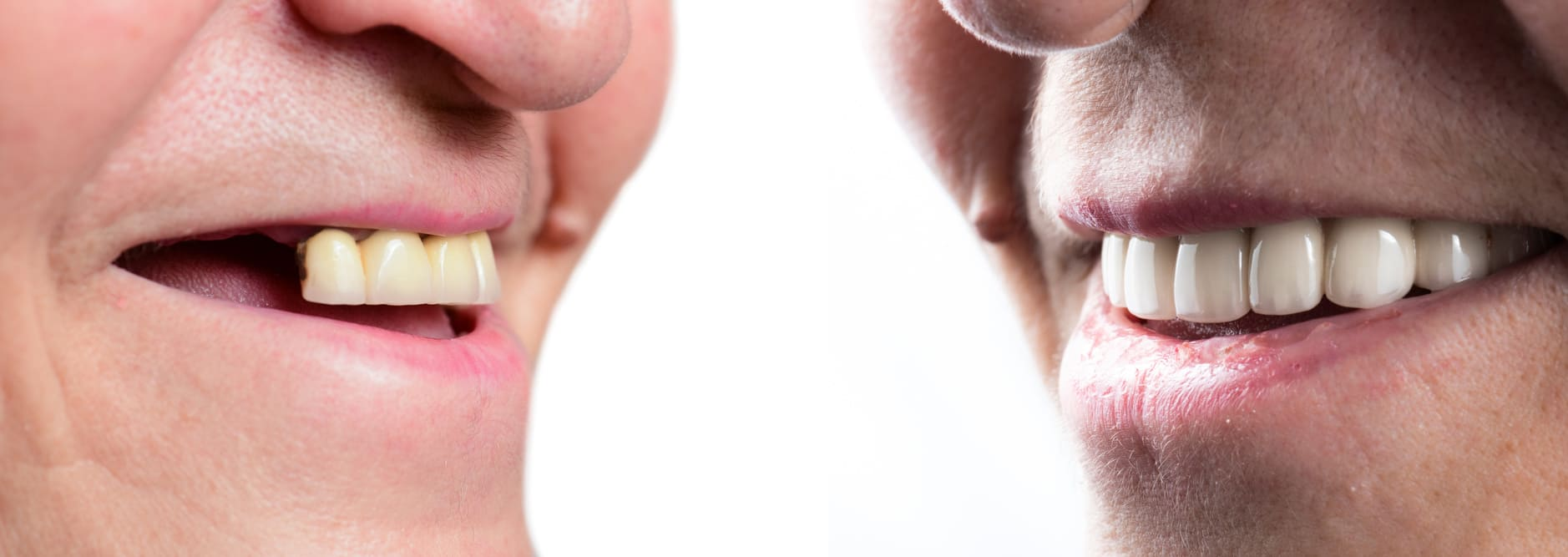 Дантист Нойбауэр про опасность мертвых зубов и металлических имплантов