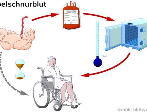 Лечение инсульта стволовыми клетками: проверенный опыт немецких и швейцарских ученых